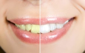 Comment blanchir les dents avec des huiles essentielles