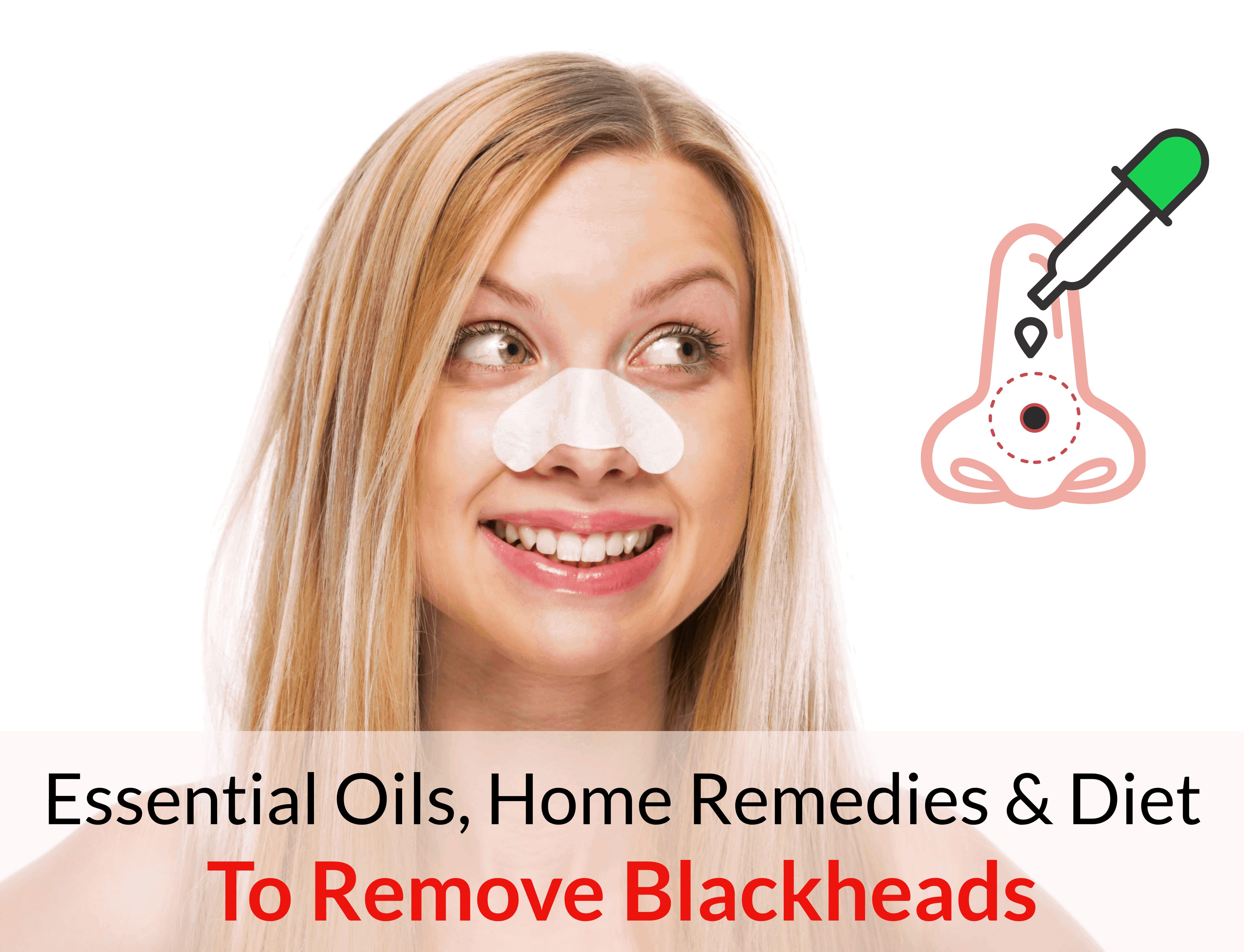 Huiles essentielles, remèdes maison et régime pour se débarrasser des points noirs