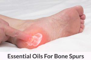 bone-spur-1024×682.jpg